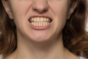 a woman with crooked teeth