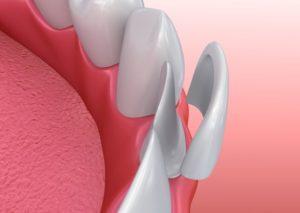 graphic showing veneers over teeth