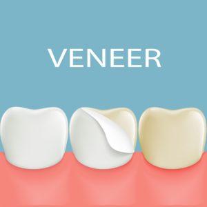 diagram of veneer