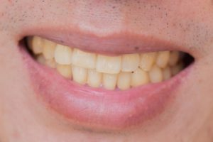 man showing badly stained teeth