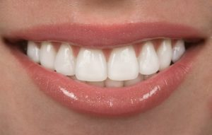 A closeup of a white smile.